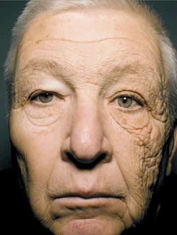 sole: effetti raggi UV sulla pelle
