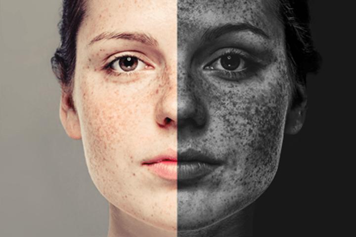 sole:effetti raggi UV sulla pelle